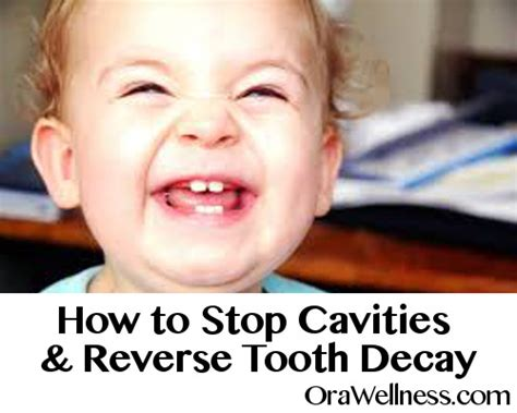 how to stop teeth how to stop cavities tooth decay and remineralize