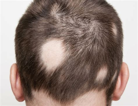 Can Showers Cause Hair Loss by Getting To The Root Of Alopecia Areata Hair Guide