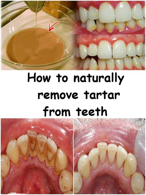 how to naturally remove tartar from teeth inspire