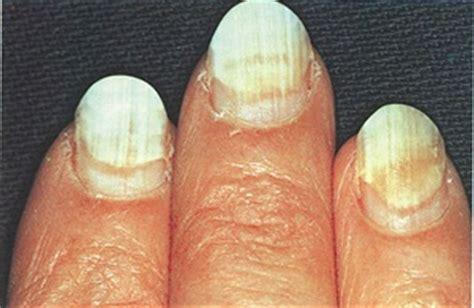 toenail separating from nail bed nail separation anxiety health nails magazine