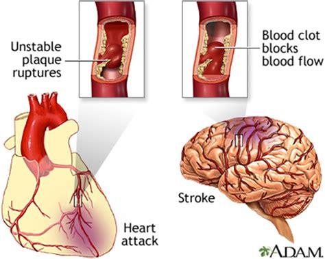 a stroke cerebrovascular