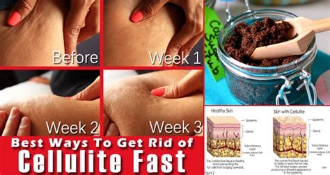 Detox Diet To Get Rid Of Cellulite by Does Brushing Get Rid Of Cellulite Diydry Co