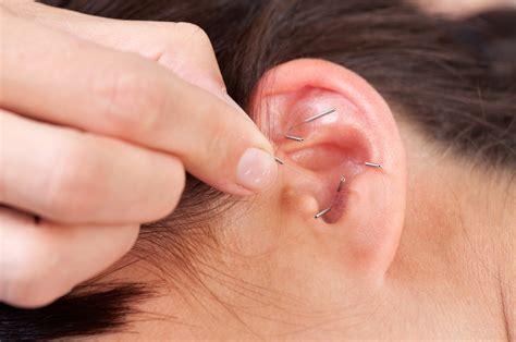 acupuncture de l oreille bienfaits ooreka