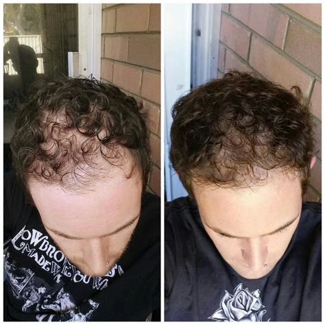 does minoxidil work women before and after pic20131212092723 jpg jpg
