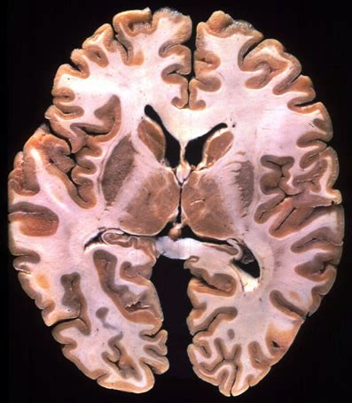 transverse brain section morphology why is the internal capsule dark in this