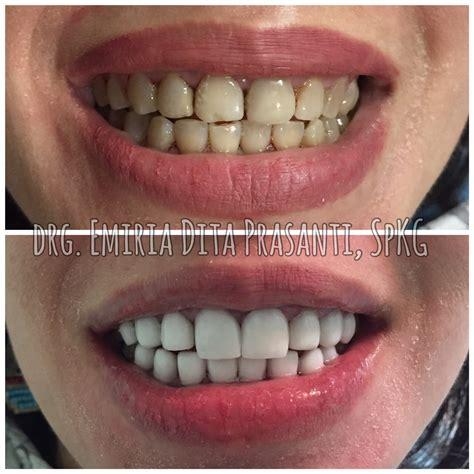 Veneer Pemutih Gigi tiga dental klinik gigi jakarta