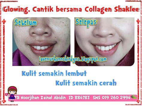 Collagen Shaklee Malaysia shaklee collagen poweder all in 1 s