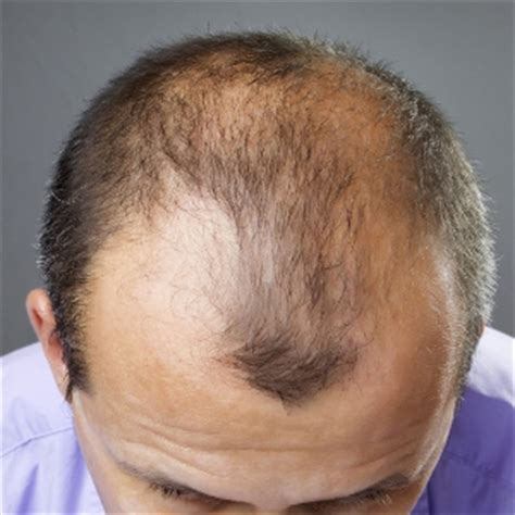 pattern baldness image natural hair loss treatments
