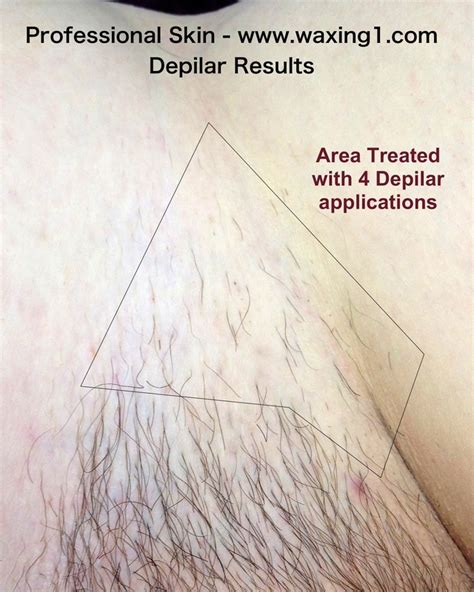 acceptable pubic hair length depilar permanent hair reduction proskin brazilian