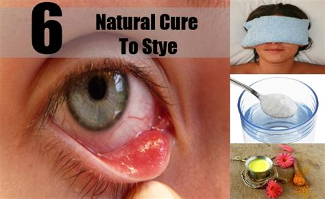 best cures for stye how to cure stye naturally