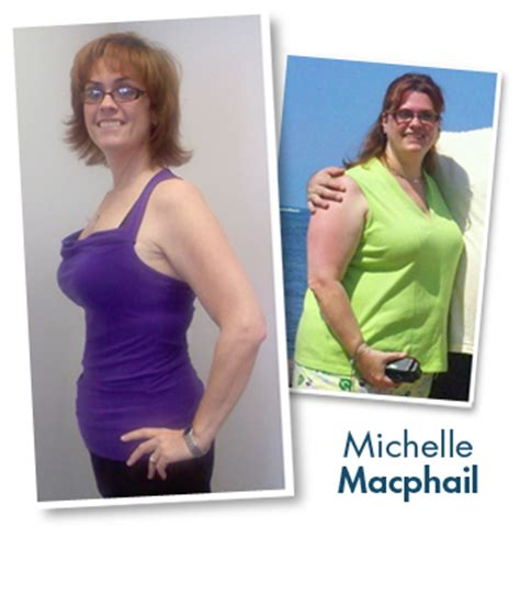 weight management org weight management baystate health springfield ma