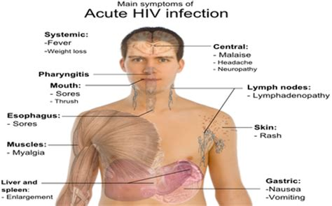 symptoms of hiv aids infection aids hiv a brief introduction