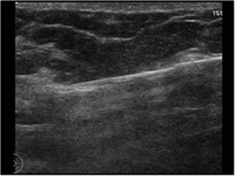 march  ultrasound cases