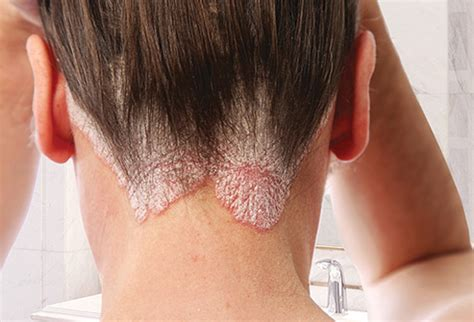 skin conditions in dark skin webmd better information pictures conditions that affect your scalp
