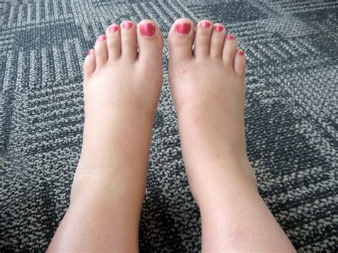 what to do for swollen feet after c section ankles swelling following flying relief and prevention