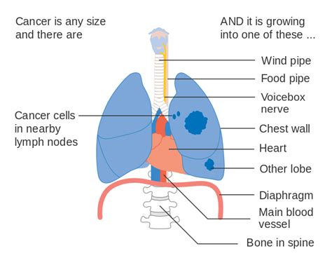 cancer diagram file diagram 3 of 3 showing stage 3a lung cancer cruk 017