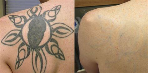 tattoo removal advice removal summer tips blink removal