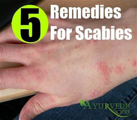 5 herbal remedies for scabies herbal remedies