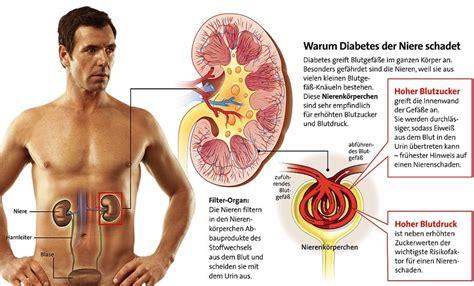 nierenschmerzen beim liegen nierenschmerzen ursache und l 246 sung bei nierenschmerzen