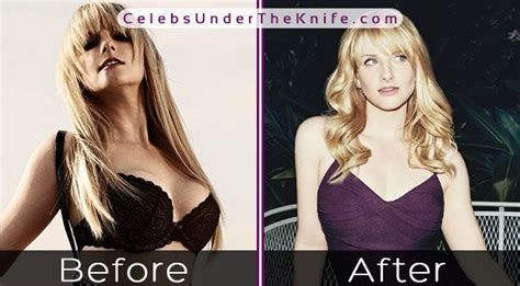 melissa rauch before and after melissa rauch breast reduction did the big bang star s