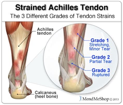 how to a not to pull while walking achilles tendon injuries and running readpt