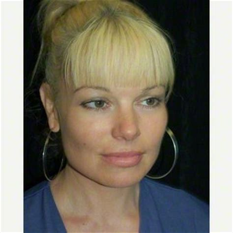 44 years old 116 best images about chin on pinterest neck lift