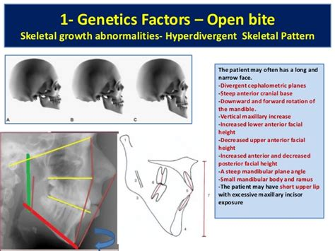 pattern classification for finding facial growth abnormalities pdf open bite malocclusion