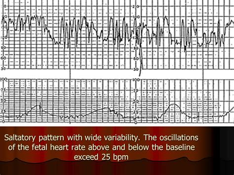 pattern heart rate saltatory pattern with wide variability ppt download