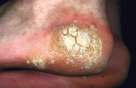 Cause Of Planters Wart by Plantar Mosaic Warts