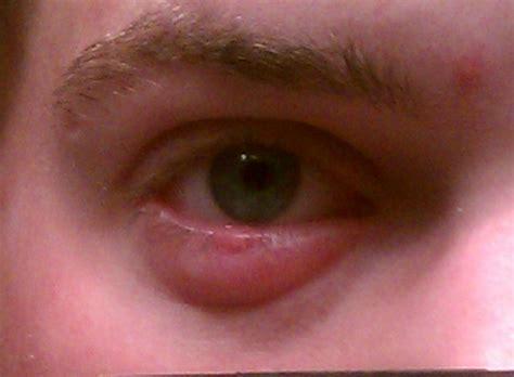 eyelid swollen the gallery for gt stye lower eyelid