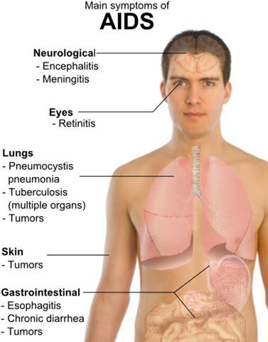 treatment and prevention of pneumocystis pneumonia in hiv