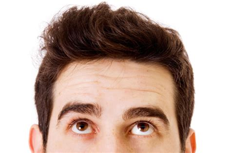 pattern baldness image male pattern baldness cure and treatment what causes and