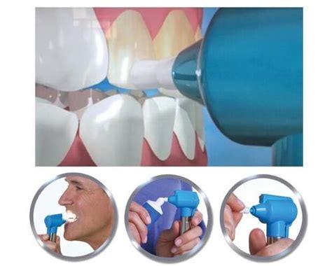 unusual items dental luma smile teeth whitening polish