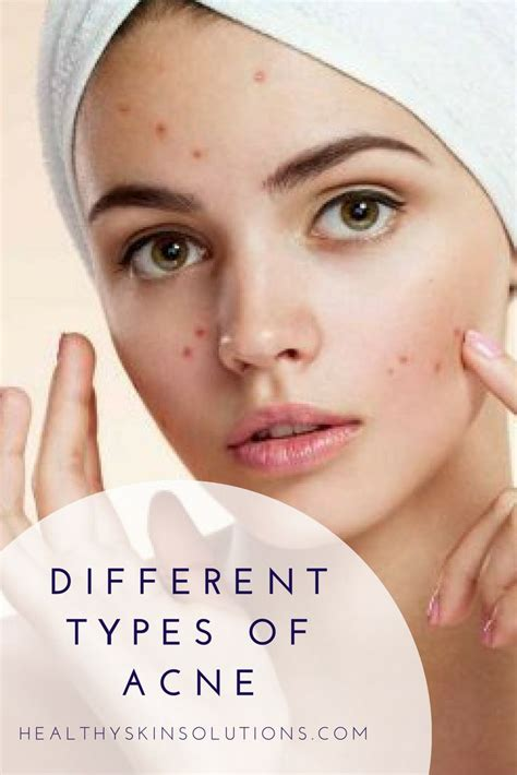 12 Best Tips On Treating Acne by 100 Best Skin Tips Images On Skin Care Tips