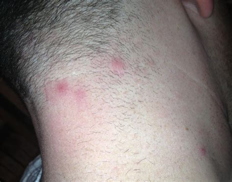 rash red bumps on back of neck pimples on the back of my neck pictures photos