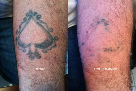 salabrasion tattoo removal at home salabrasion removal at home houzz