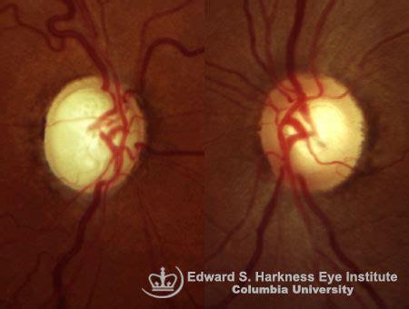 glaucoma glaucomatous cupping