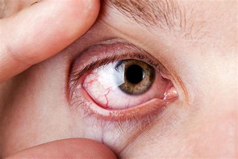 sintomi emorragia interna emorragia retinica cause sintomi cura prevenzione