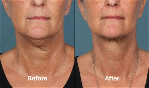 kybella before amp after warrenton dermatology amp skin