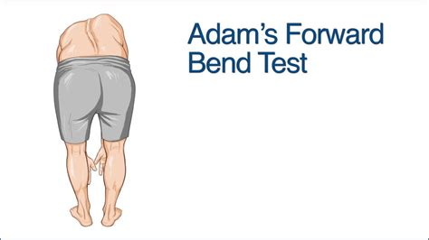 test forwarding adam s forward bend test on vimeo