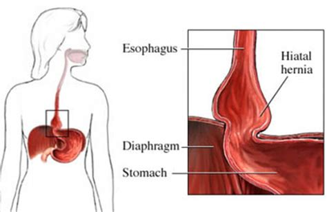 diagram of hiatal hernia where can i find picture diagram of hiatal hernia ive been