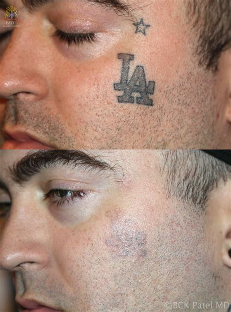 laser tattoo removal salt lake city dr bhupendra ck patel