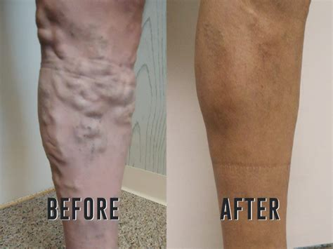 what are varicose veins schedule a consultation today