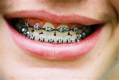with braces no more geeky metal braces with clear options from invisalign