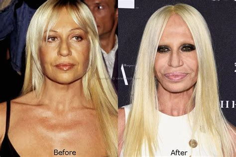 How To Smell Like Donatella Versace by The Story Of Donatella Versace Plastic Surgery Disaster
