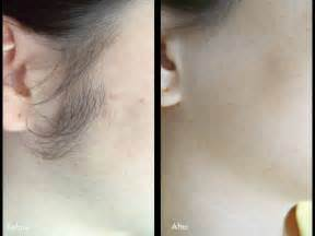 laser hair removal photos laser hair removal phoenix az camelback health care