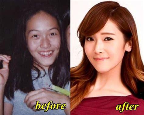 jessica parido face plastic surgery former snsd member jessica jung plastic surgery plastic