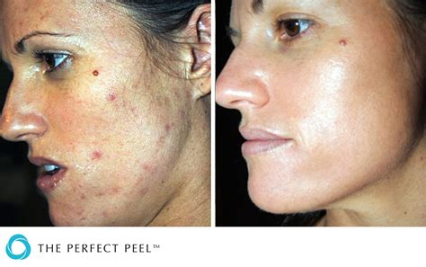 light chemical peel before and after chemical peels renew aesthetics