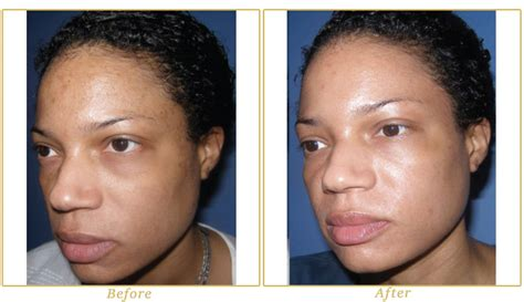 light chemical peel before and after chemical peels westlake chemical peels