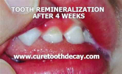 oil pulling before bed photographic proof that cavities heal